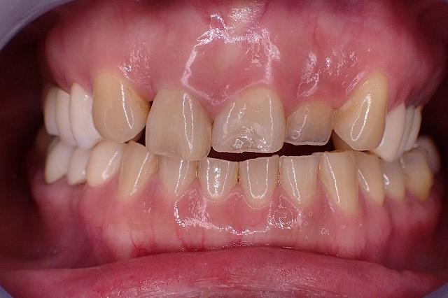 すり減った前歯