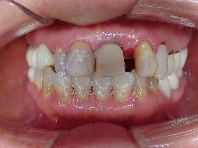 矯正 自分 で 前歯