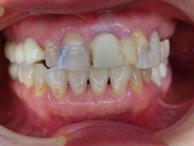 た 仮 歯 取れ